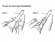To Put On Your Leg Immobilizer